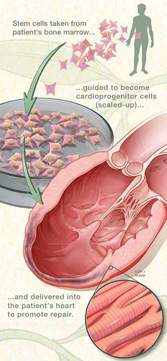 Medical illustration showing how Mayo Clinic researchers have discovered a novel way to repair a damaged heart by regenerating heart tissue.
