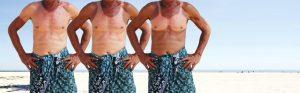 Sunburned fishermen.