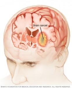 ds00281_im01630_mcdc7_brain_cancerthu