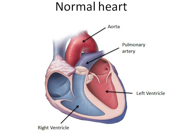 Hypoplastic Left Heart Syndrome Recently Diagnosed Mayo Clinic