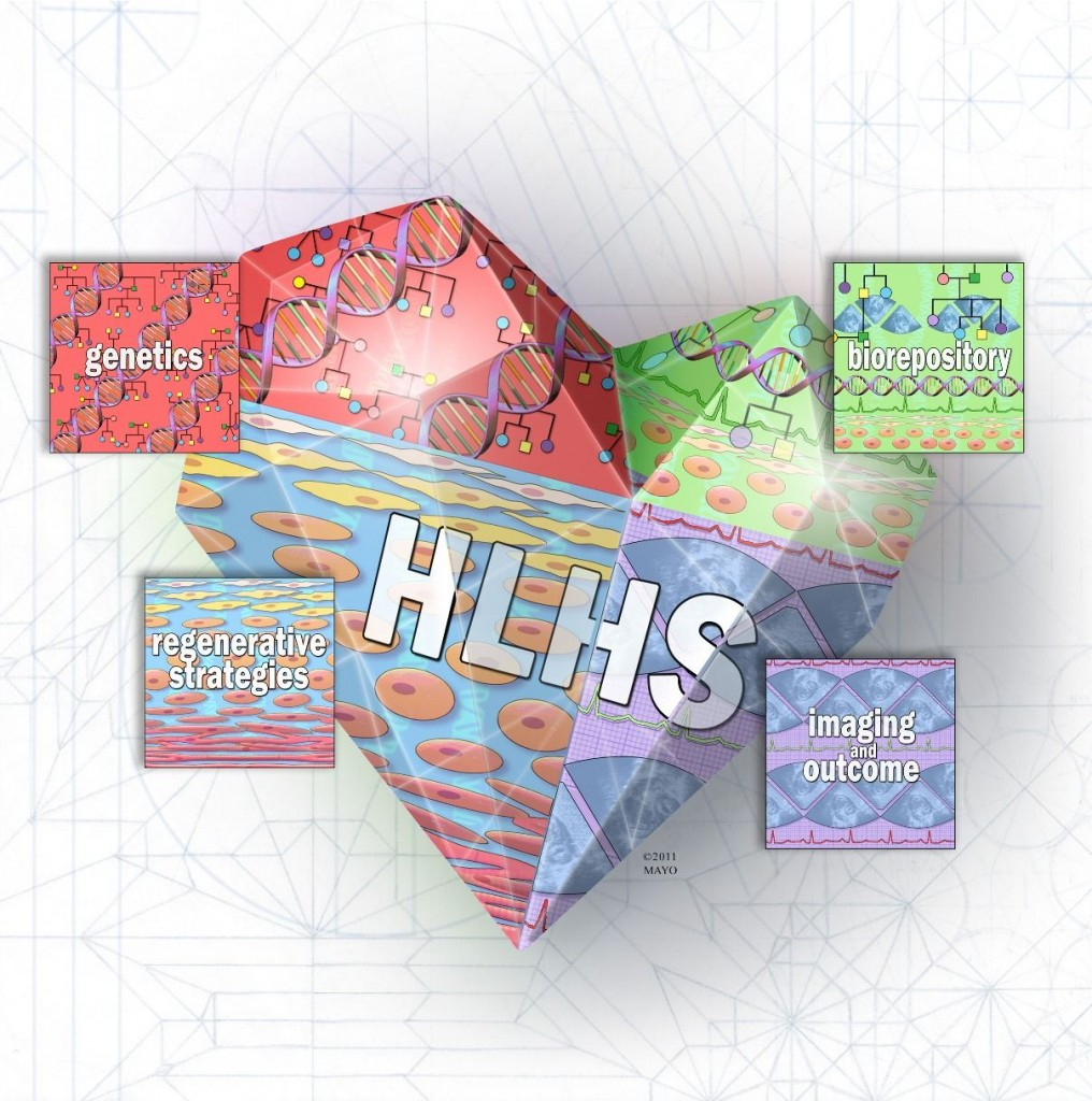 HLHS heart blocks labelled