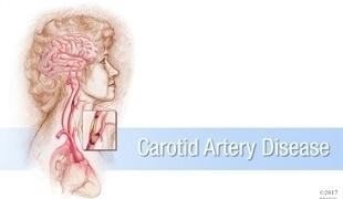 #MayoClinicNeuroChat on Carotid Artery Disease