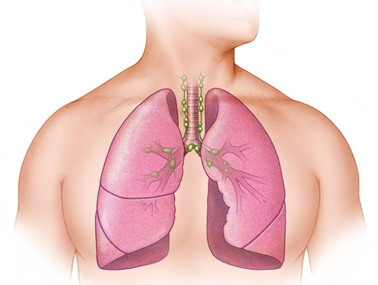 Webinar: Interstitial Lung Disease and Lung Transplant: What Patients Need to Know