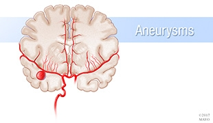 #MayoClinicNeuroChat about Aneurysms and 3D Modeling