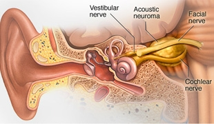 #MayoClinicNeuroChat on Acoustic Neuromas with Dr. Weisskopf
