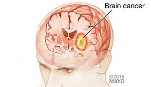 #MayoClinicNeuroChat about Brain Tumors