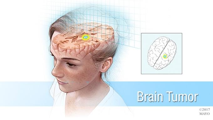#MayoClinicNeuroChat about Pediatric Brain Tumors