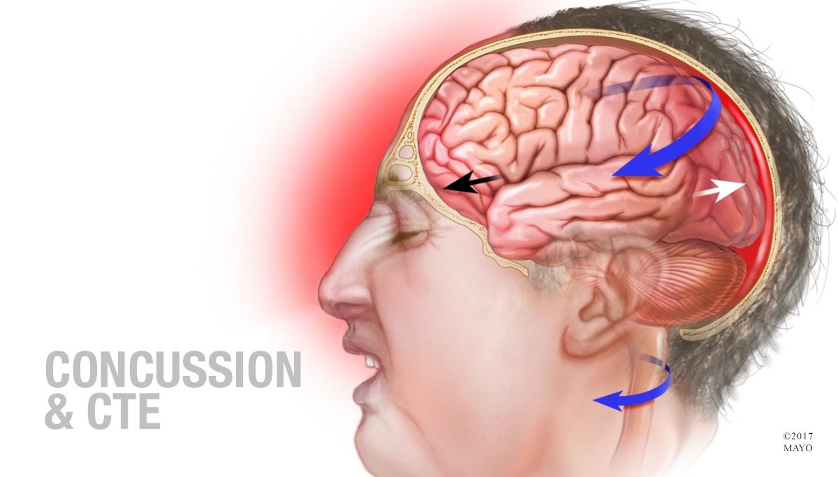 Video Q&A about Concussion & CTE
