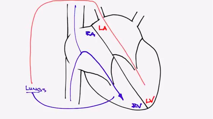 Pulmonary Valve Regurgitation