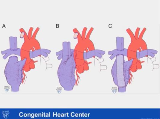 Heart Transplant slide