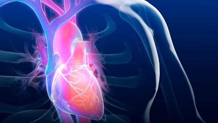Video Q&A about Men's Heart Health