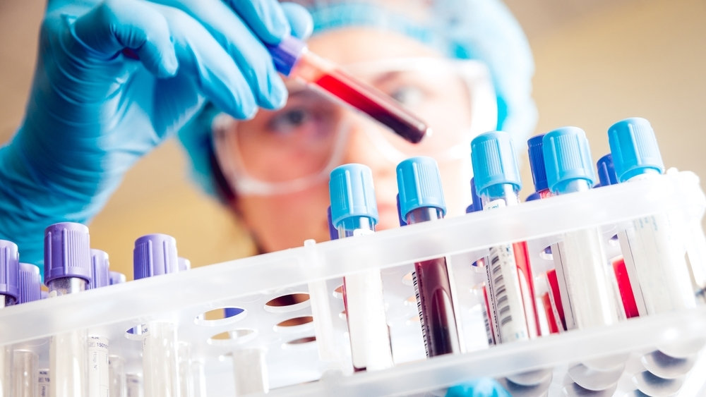 Researching DNA test for liver cancer
