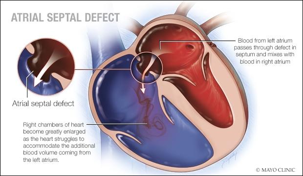Atrial Septal Defect Cap