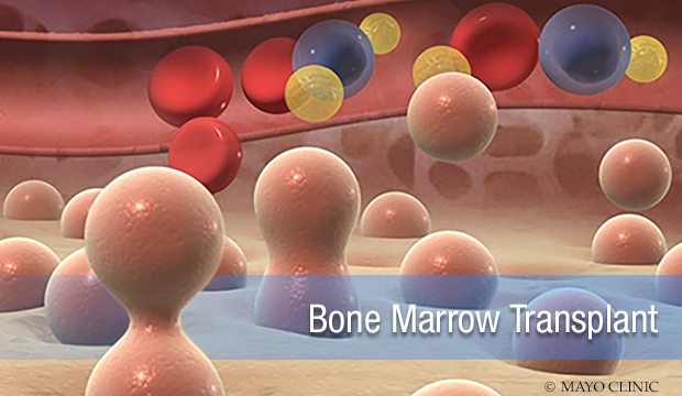 Video Q&A about Bone Marrow Transplant and CAR-T Cell Therapy