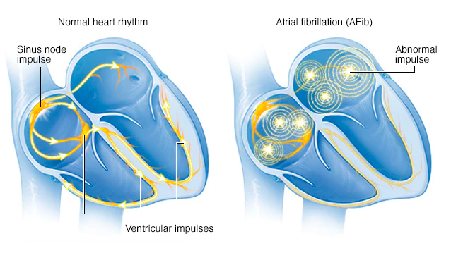 Video Q&A about Atrial Fibrillation
