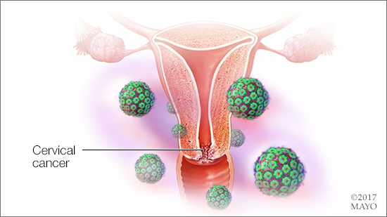 Video Q&A about Screening and Treatment Options for Gynecologic Cancers