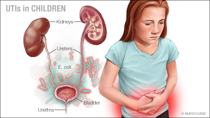 Video Q&A about Problems Affecting the Kidneys, Bladder, Urethra or Genital Tract