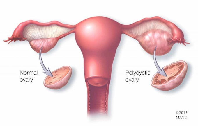 Video Q&A about Polycystic Ovary Syndrome