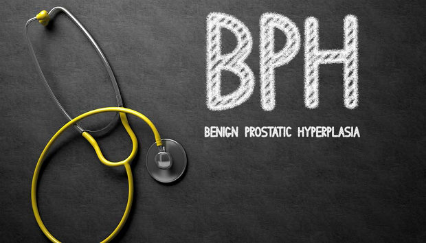 Steam Treatment for Benign Prostatic Hyperplasia