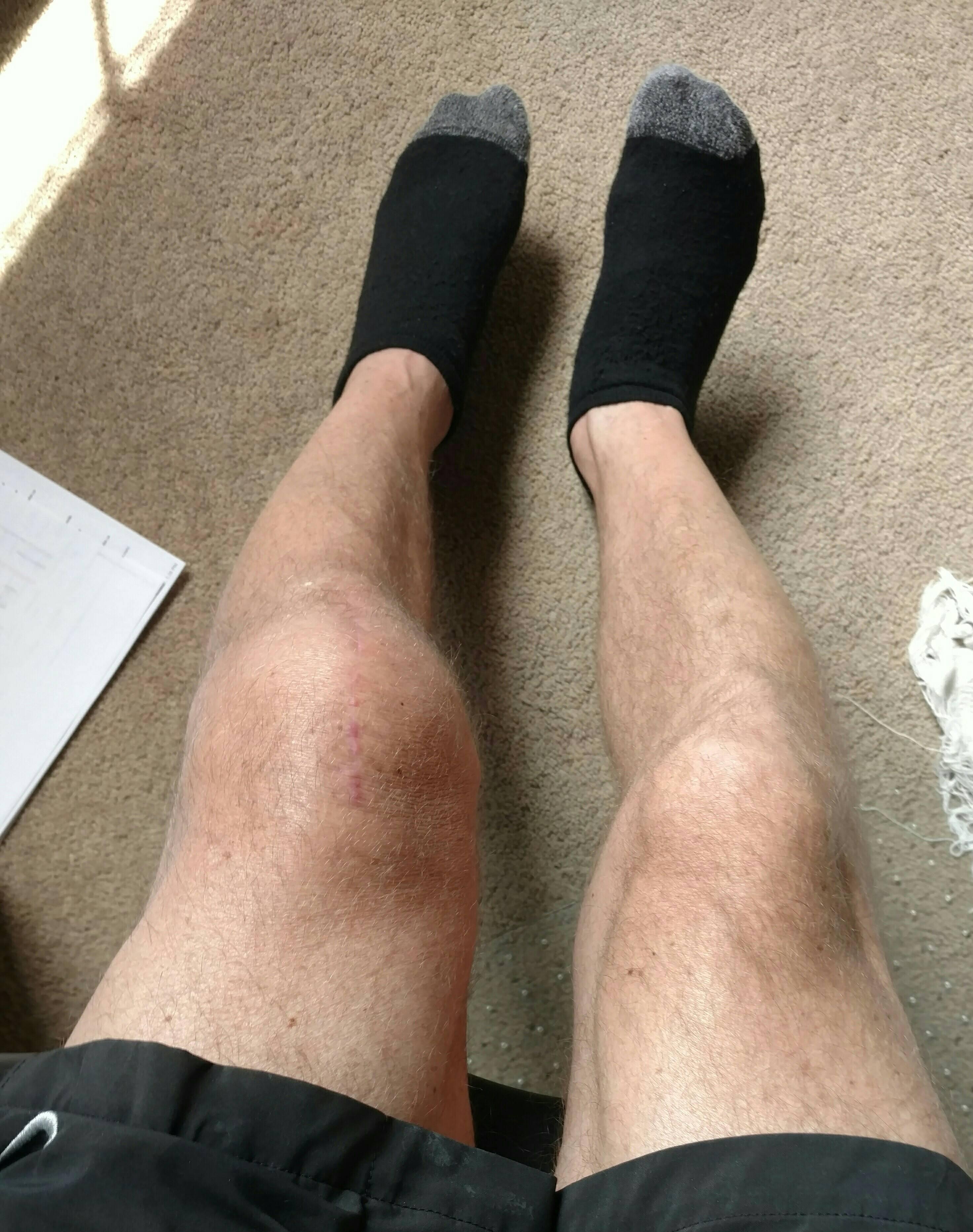 6 weeks post surgery left knee