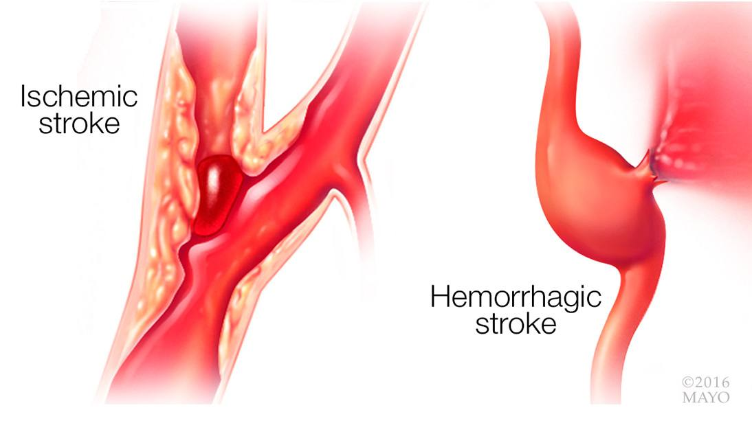 Video Q&A about Stroke