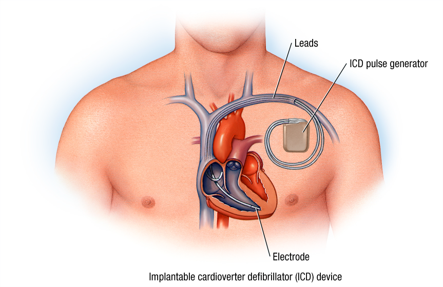 Avoiding ICD Implantation in Primary Electrical Disease