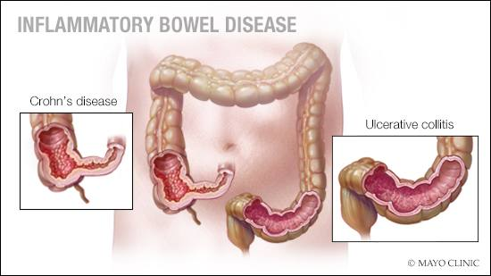 a-medical-illustration-of-inflammatory-bowel-disease-original