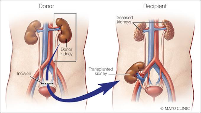 Video Q&A about Pediatric Kidney Transplants