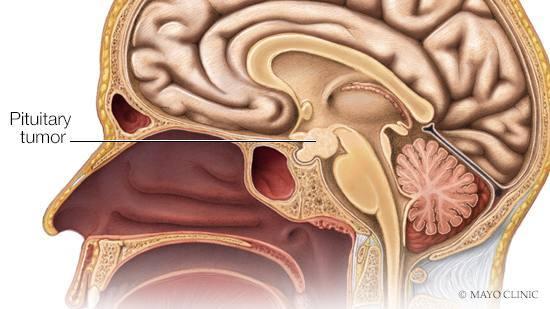 pituitary-tumor16x9opt-3