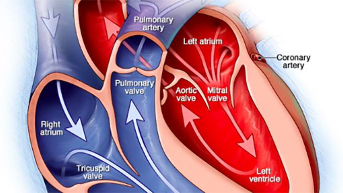 Video Q&A about Valvular Heart Disease