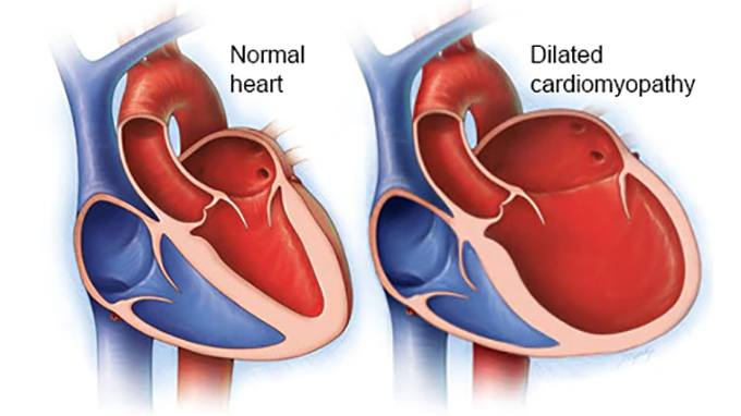 Video Q&A about Cardiomyopathy