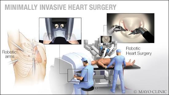 minimally-invasive-heart-surgery-16x9