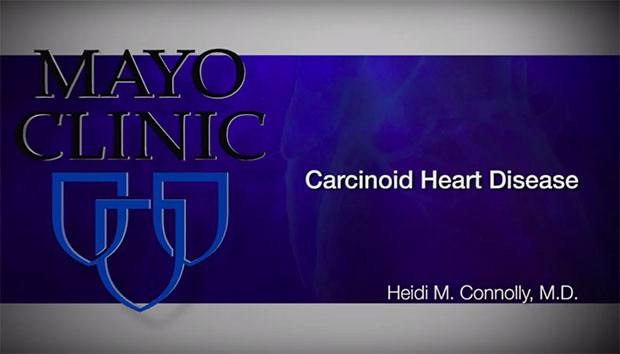 2019-10-30 Cacinoid Heart Disease