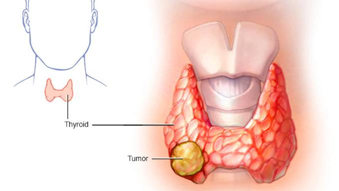 Thyroid Cancer Conference for Patients