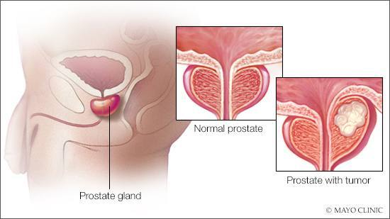 medical illustration of prostate cancer tumor