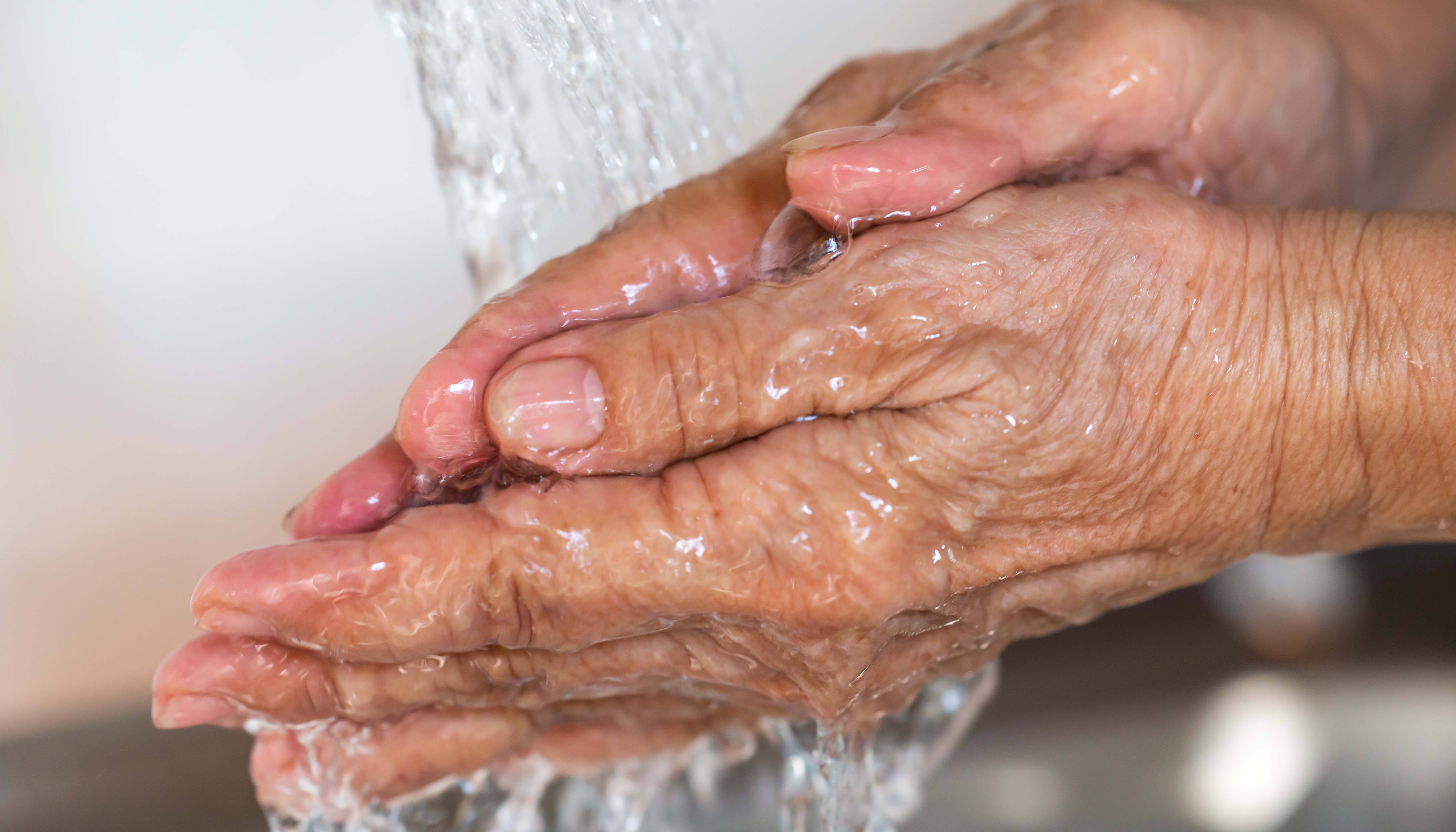 Skin disease and hand washing: soothing a flare up