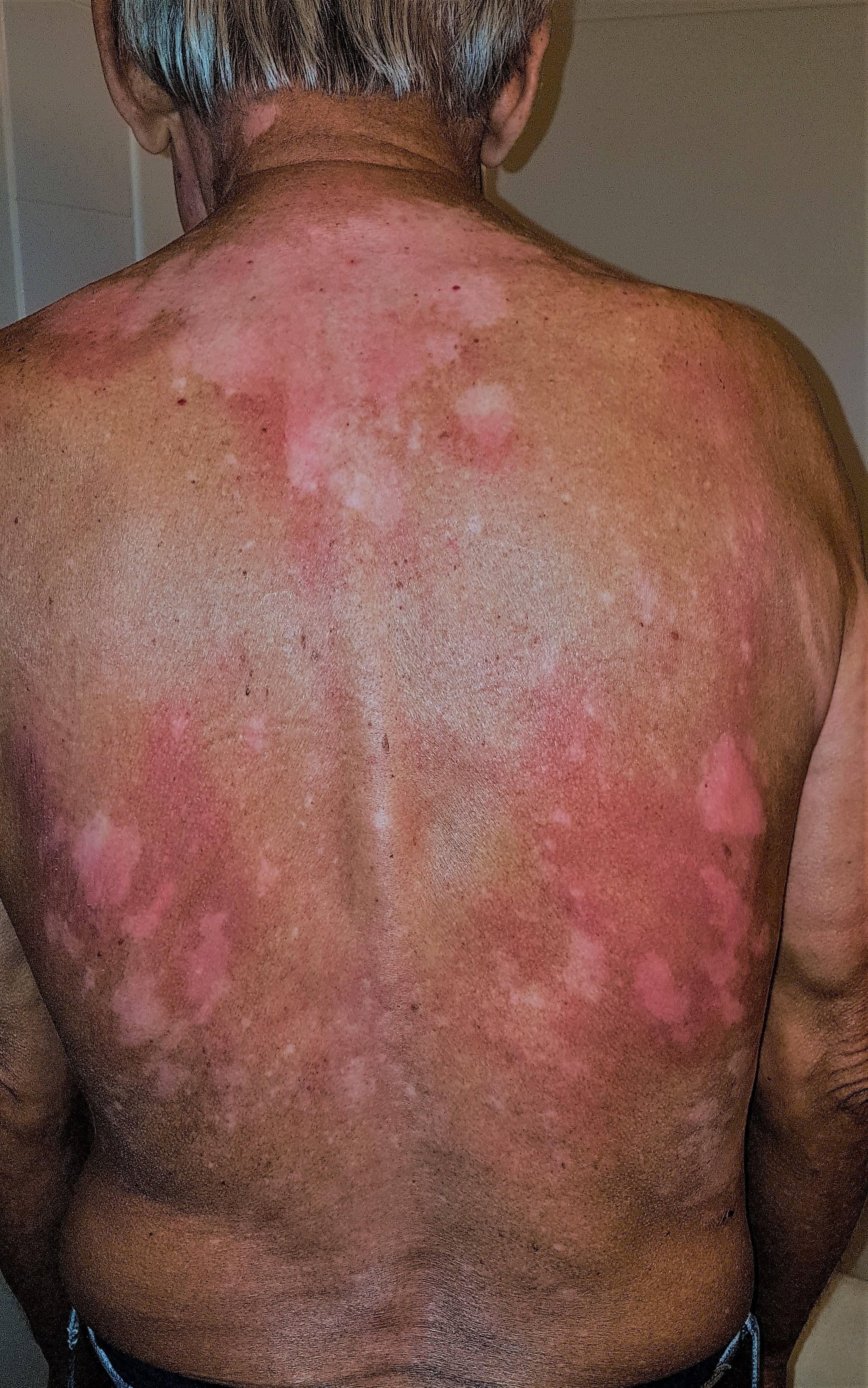 skin (2)