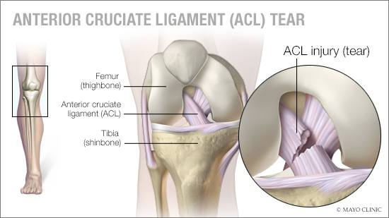 a-medical-illustration-of-an-anterior-cruciate-ligament-ACL-tear-16X9