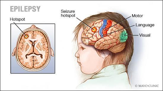 epilepsy_16x9-1
