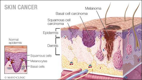 a-medical-illustration-of-normal-skin-and-three-types-of-skin-cancer-squamous-cell-carcinoma-basal-cell-carcinoma-and-melanoma-16X9