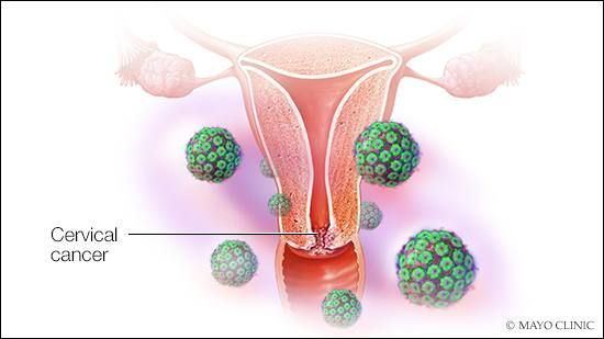 Screening can catch cervical cancer early