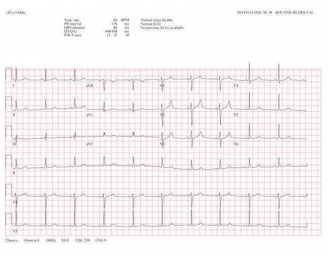 Example ECGs_Page_2_1