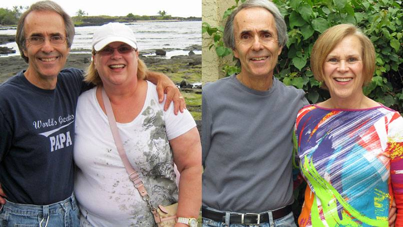 Sunny Johnson with her husband, Jeff, before and after surgery.