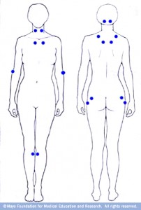 human body drawings with marks defining tender spots for fibromyalgia