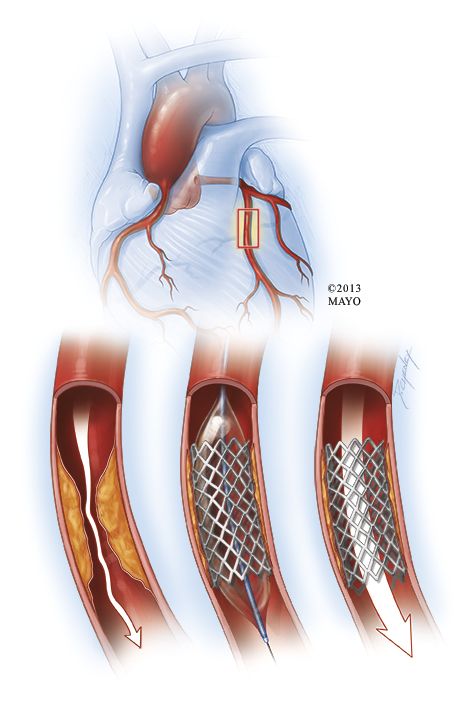 Mayo Clinic illustration of a heart angioplasty with a stent inserted in the artery