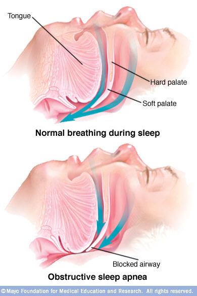 Illustrations of normal sleep breathing and blocked-airway sleep apnea breathing