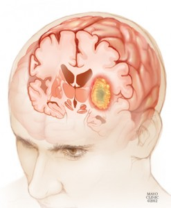 Illustration of a glioma in a young man