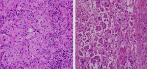 A typical low-grade bladder cancer (urothelial carcinoma), left, and micropapillary urothelial carcinoma (MPUC) appear side by side. Pathologists often have difficulty identifying MPUC, a more aggressive disease that has few good treatment options, says John Cheville, M.D., a Mayo Clinic pathologist. Genomic evaluations for amplification of the HER2 gene could help guide treatment decisions and improve care for a subset of these patients.