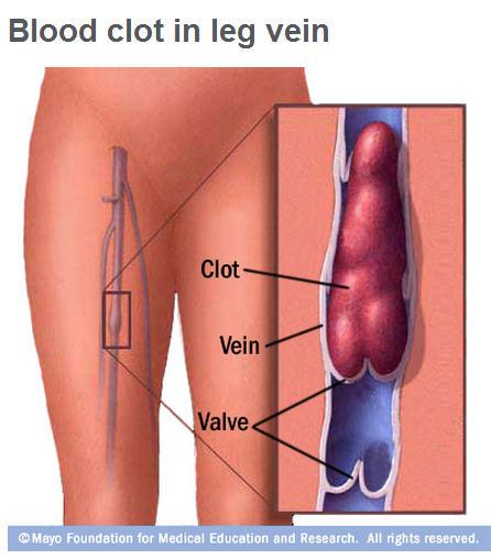 Deep Vein Thrombosis Illustration