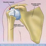Skeletal illustration 'frozen shoulder' (adhesive capsulitis)